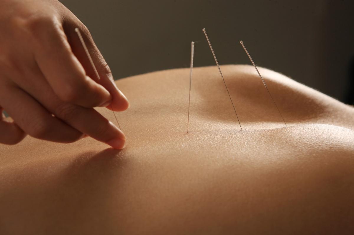 nine-needles